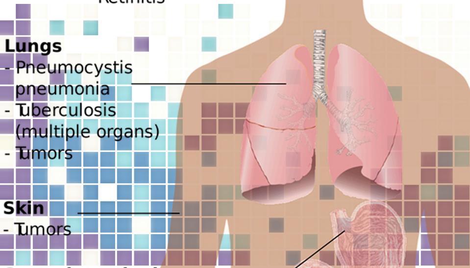 肺マック症とは?原因と症状!女性がかかりやすい?